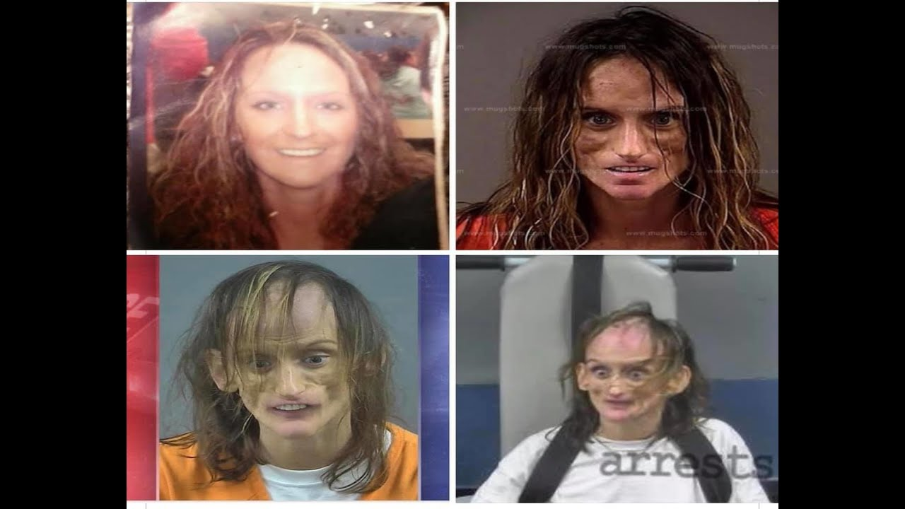 MISTY LOMAN  Shocking Before and After photos  YouTube