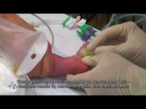Paediatric Anaesthetics: Chapter 7 Long saphenous IV neonate 1