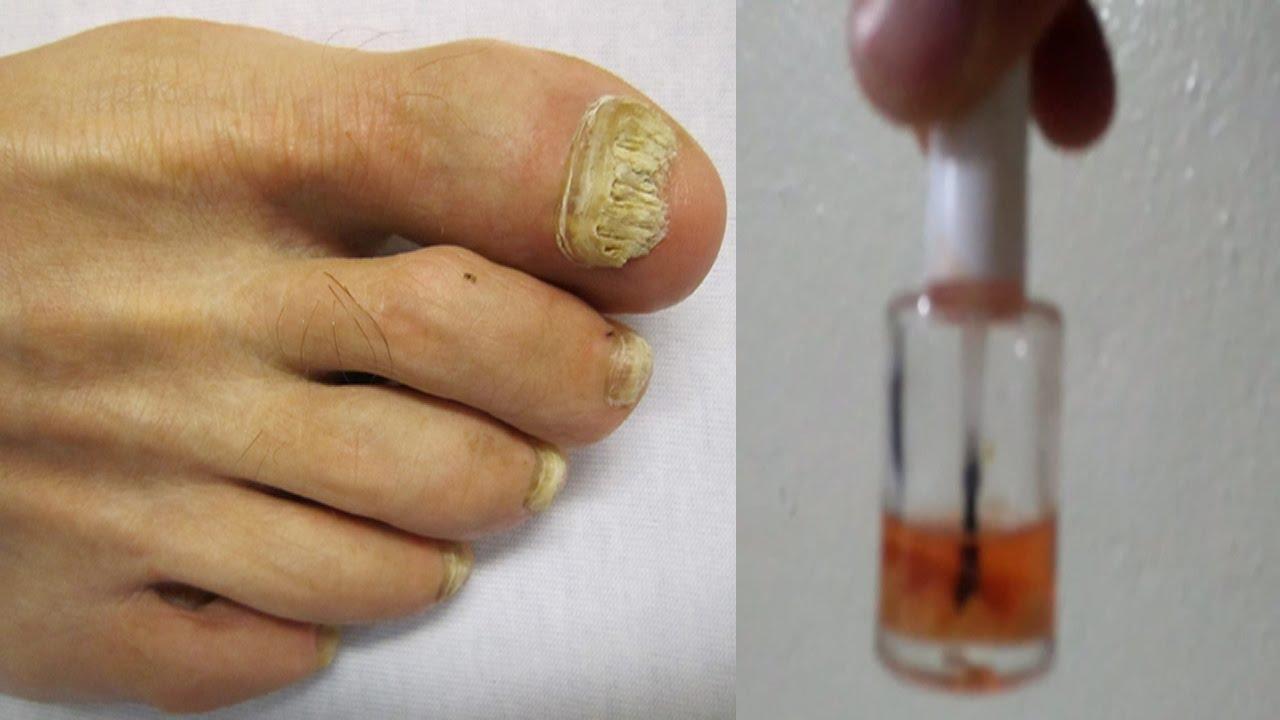 Tratamiento para el fortalecimiento y crecimiento de las uñas Con ...