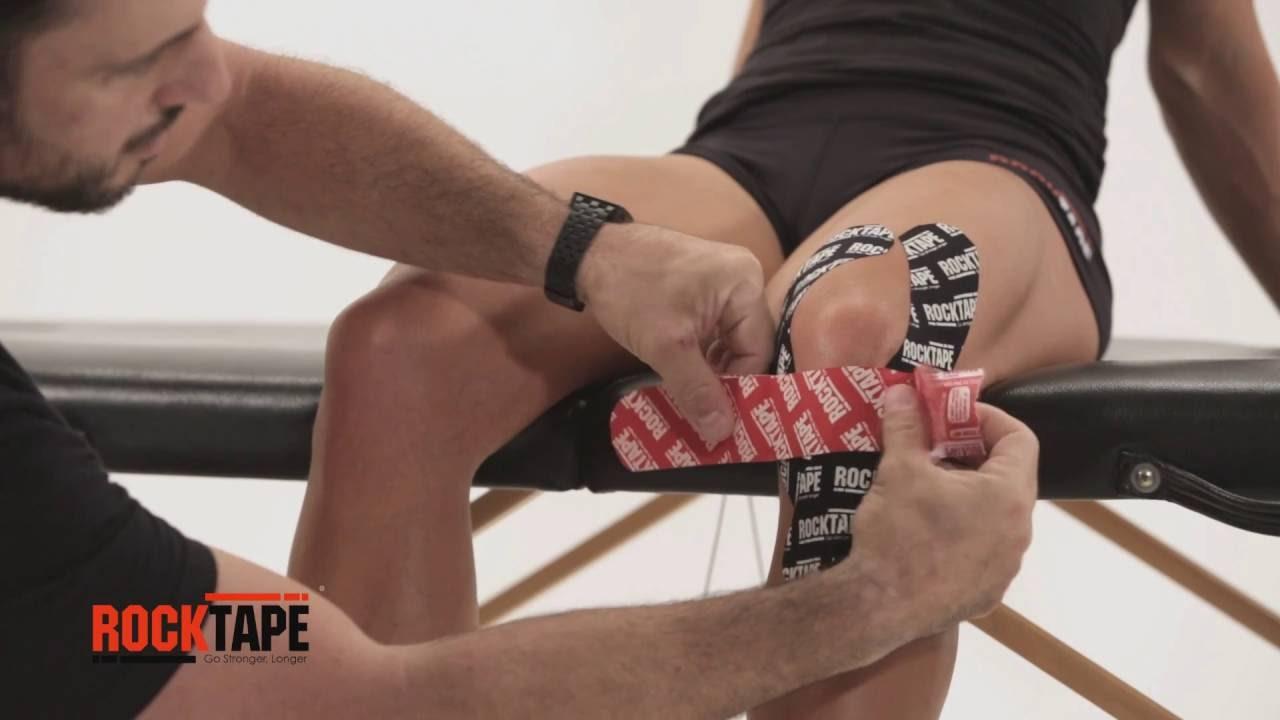 Кинезиотейпирование коленного сустава видео болезни коленных суставов симптомы лечение