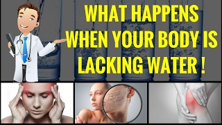 10 Signs Proved That Your Body is Lacking Water - Dehydration Facts