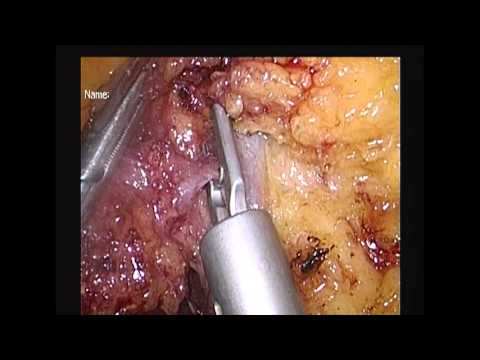 Lap D3 rightcolectomy with preserving middle colic vessels