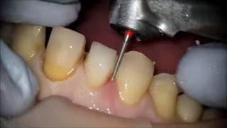 KAPLAMA DİŞ HAZIRLIĞI İZMİR ( Yeşilyurt-Ağız-ve-Diş-Sağlığı-Polikliniği )