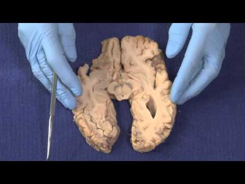 Basal Ganglia: Neuroanatomy Video Lab - Brain Dissections