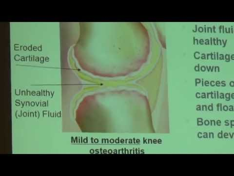 Advances in Knee Pain