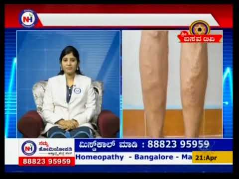 Namma Homeopathy Dr Asharani Varicose veins