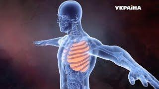 Нелегальна трансплантація людських органів | Гучна справа