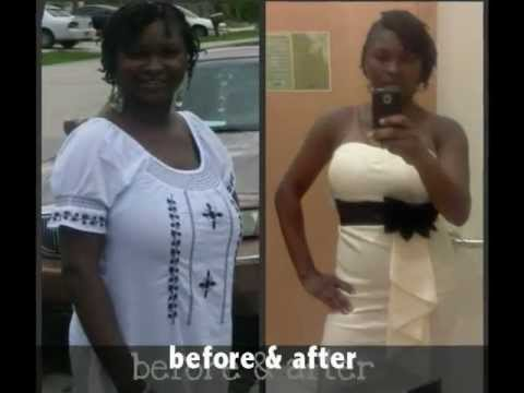 Extreme Weight Loss Before Amp After On Zxt Gold Infini