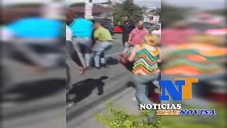 POLICÍAS ATROPELLAN Y MUTILAN PIERNA DE JOVEN EN SANTIAGO