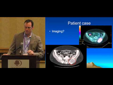 Thyroid Cancer: Radioactive Iodine Ablation, New Research Data Dr Klopper ThyCa Conference
