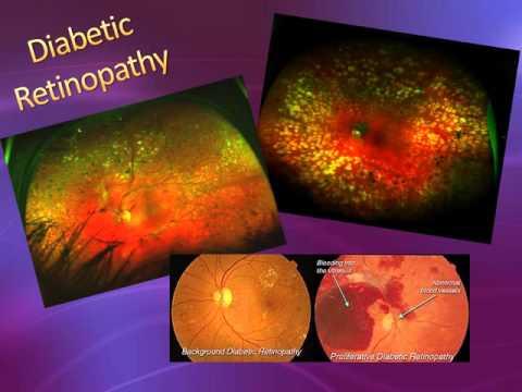 Optos Presentation - Vision Square Eye Care