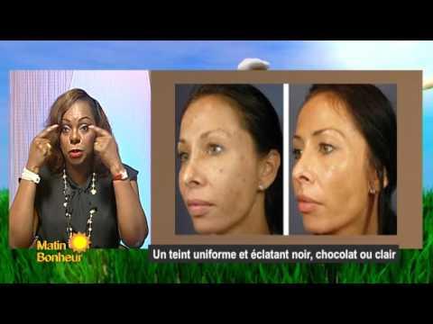 #MatinBonheur Beauté: un teint uniforme et éclatant noir, chocolat ou claire vaec Dr Sonia Anagonou