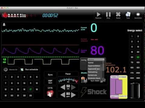 ECG Simulator - EKG Rhythm Simulator