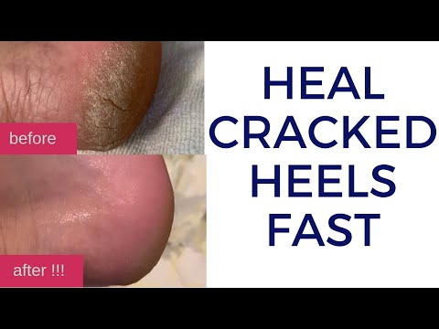 How To Quickly Heal Cracked Dry Feet & Heels Naturally | DIY Natural Treatment For Cracked Heels