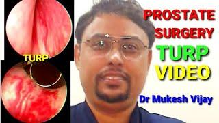 turp műtét video