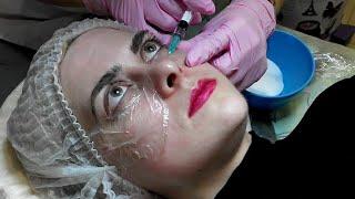 Мезотерапия/Инъекции красоты(, 2018-04-03T06:13:30.000Z)