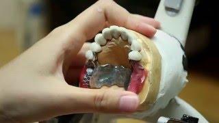 Prothèse clipsée sur dents [Réalisation] - Endurance Implant