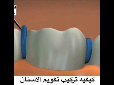 كيفيه تركيب تقويم اسنان Youtube