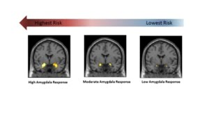 A Brain Marker Pinpoints Vulnerability for Future Life Stress {Duke University Research}