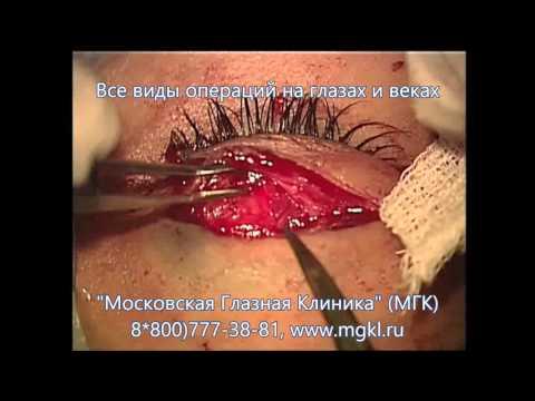 Операция при грыже века (верхнего или нижнего) - блефаропластика