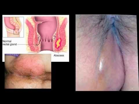 Infected Boil On Anus