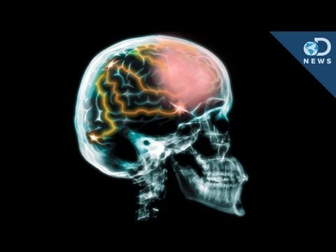 Do We Really Use Only 10% Of Our Brain?