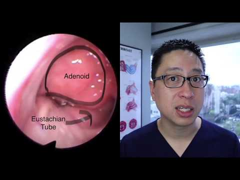 Adenoids and Adenoidectomy: what are they, when do we remove them, what is the surgery like