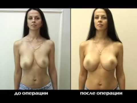 Упражнения для увеличения груди подростка