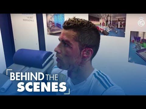 Cristiano Ronaldo INJURY | BLOOD ALL OVER FACE