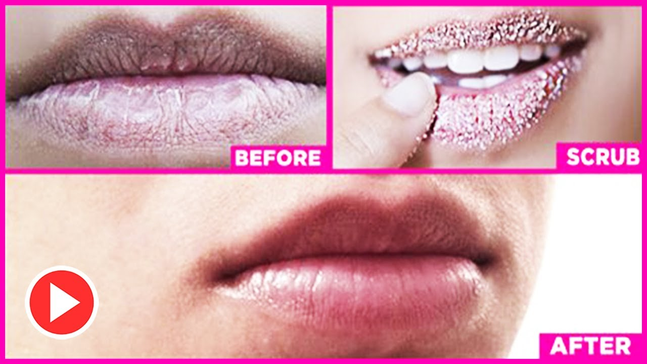 3 Proven Ways For How To Make Your Lips Pink Naturally – Worked For 99% People Who Tried