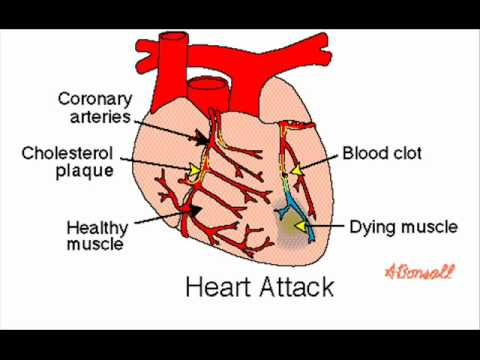 Aspirin heart attack cancer health education infection aspirin heart attack cancer health education infection control icsp urdu hindi ccuart Image collections