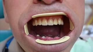 Несъемное протезирование зубов в г Сумы,Съемные зубные протезы,Изготовление зубных протезов в городе(Зубные протезы , изготовление зубных протезов в г . Сумы, у нас они в городе Сумы Несъемное,Съемные.Протезир..., 2013-08-05T14:35:59.000Z)