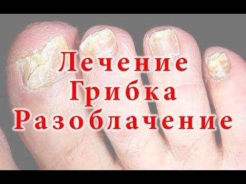 Бабушкин метод лечения грибка ногтей