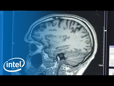 Decoding Data from Brain Scans using Intel AI Technology | Intel Business