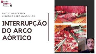 INTERRUPÇÃO DO ARCO AÓRTICO: da anatomia à estratégia cirúrgica (videoaula).