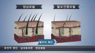 인천탈모치료, 헤어셀 장비 소개 | JK위드미 송도점