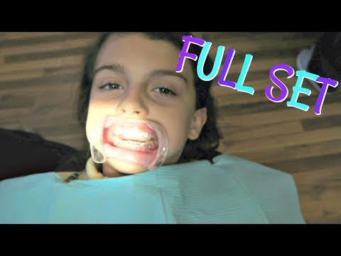 GETTING A FULL SET OF BRACES ON! I AM SO THANKFUL FOR THEIR NEW SCHOOL!