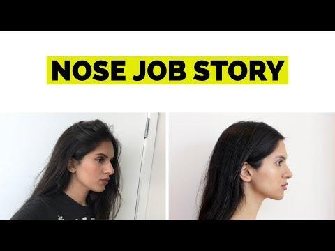 NOSE JOB STORY