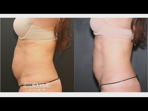Zapping Fat without Surgery with UltraShape