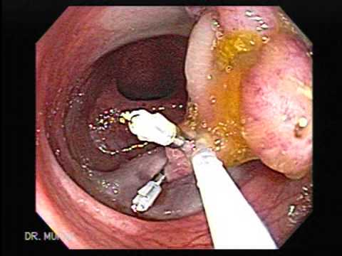 Polipectomía de Masa Multilobular Colon Descendente