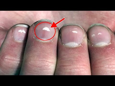 What Causes White Spots On Nails.! My Grandmother Told this Secret What white marks on nails mean