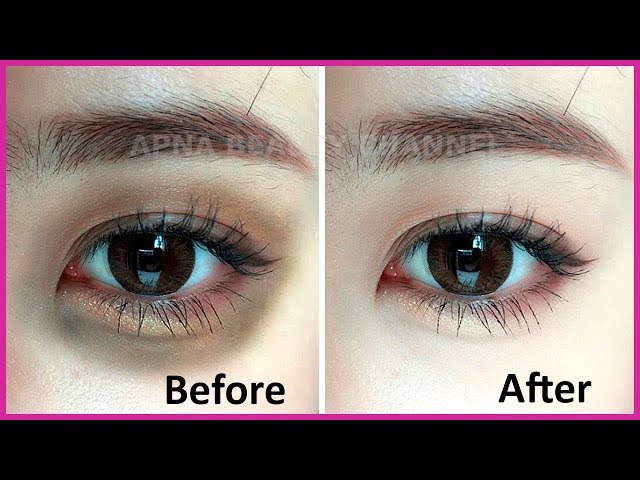 ???? ????? (DARK CIRCLES) ?? ???? ??????? ???? -Get  Rid of Dark Circles in 7 Days-Best Home Remedy