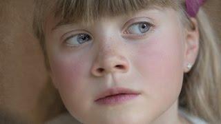 Nase verstopft ☆ Tipps vom Kinderarzt