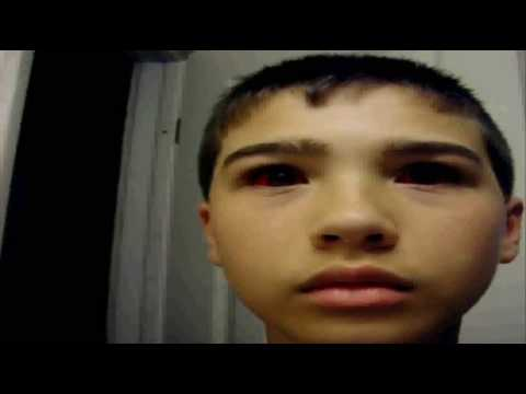Real Person With Red Eyes Weird Mutation Youtube