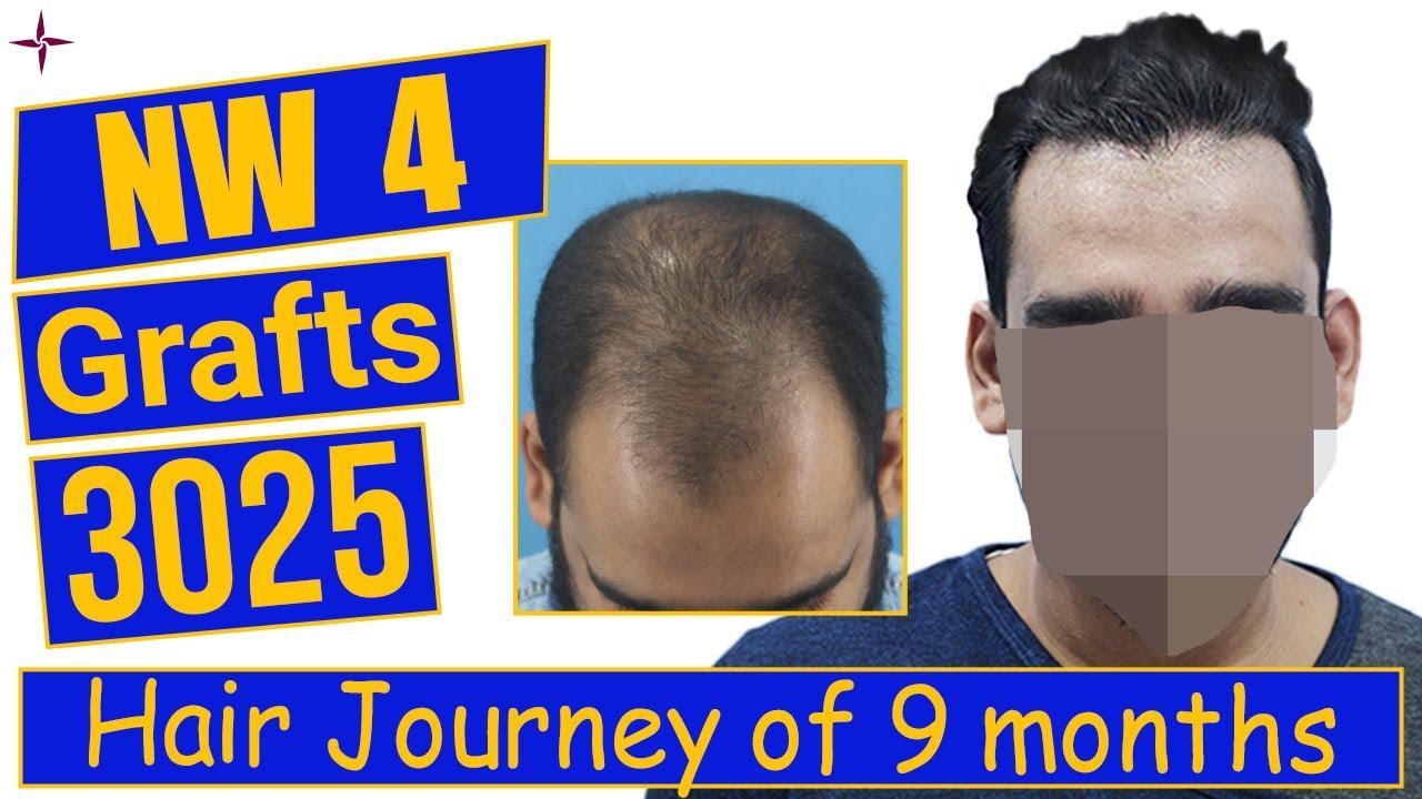 Hair Transplantation: 3025 grafts, Grade 4 @Eugenix Hair Sciences by Drs Sethi & Bansal