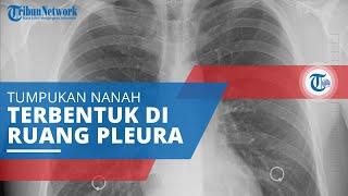 TRIBUN-VIDEO.COM - Fibrosis paru merupakan keadaan yang menyebabkan paru-paru mempunyai jaringan par.