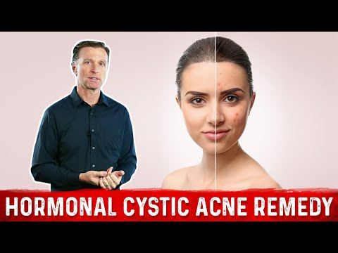 Best Remedy for Hormonal Cystic Acne