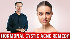 hqdefault - Recommended Treatment For Cystic Acne