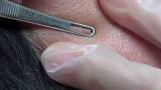 Father's day Pop- Blackhead Extractions - Natalie's Creations thumbnail