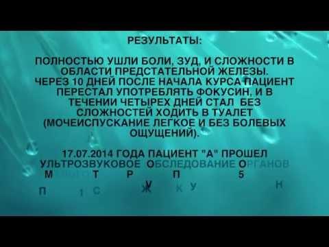Аденокарцинома предстательной железы до и после курса ВОЛНОВОЙ ТЕРАПИИ - onko-stop.com